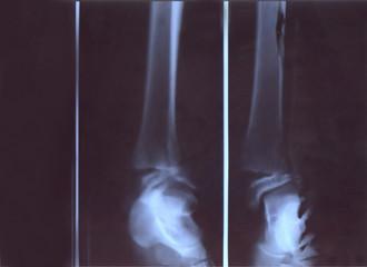 broken leg x-ray