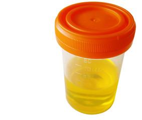 urine sample