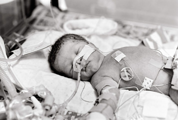 premature baby boy