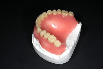 oberkiefer zahn vollprothese