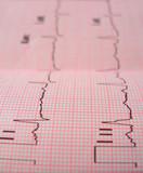 heart analysis scheme - 559373