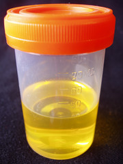urine sample in specimen bottle