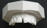 plaster cast of teeth poster