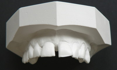 plaster cast of teeth