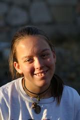 teenage girl with acne