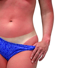 woman with bad sunburn - isolated