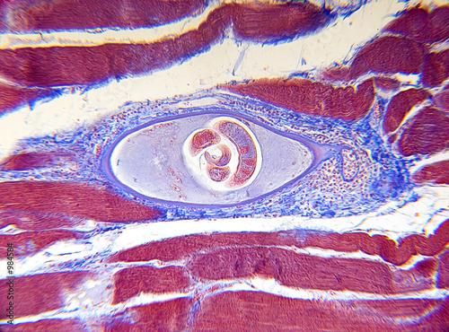 microscope-trichinella spiralis - 984584