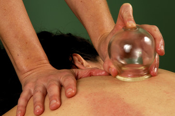 massage gua-sha cupping treatment