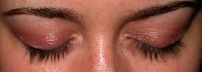 yeux fermés 1