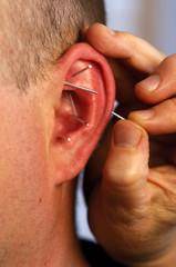 acupunturist needling acupoints in ear