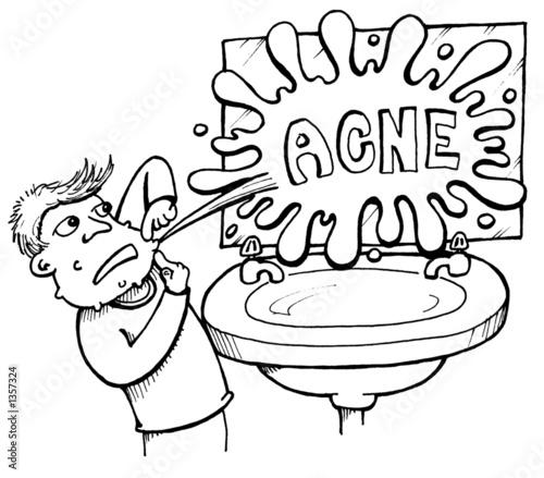 La diferencia del acné de los recién nacidos de la alergia de la foto