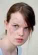 injured woman 2