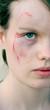 injured cheek