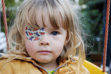 child with eyepatch