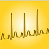 heartbeat yellow