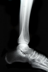 close-up x-ray of a ankle