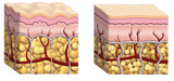 cellulite cross section poster