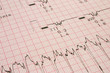 cardiological test results