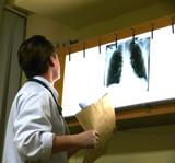 surgeon examines an xray poster