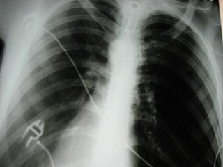 gullet, oesophagus xray