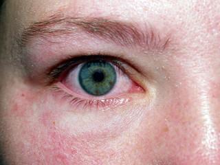 crying / allergy eye