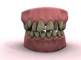 teeth model poster