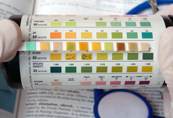urine ph test
