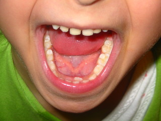doppelter zahn