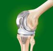 protesi ginocchio con ossa