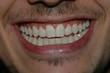 sourire 3