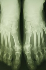 x-ray photo of person's feet