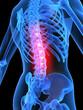 skelett mit rückenschmerzen