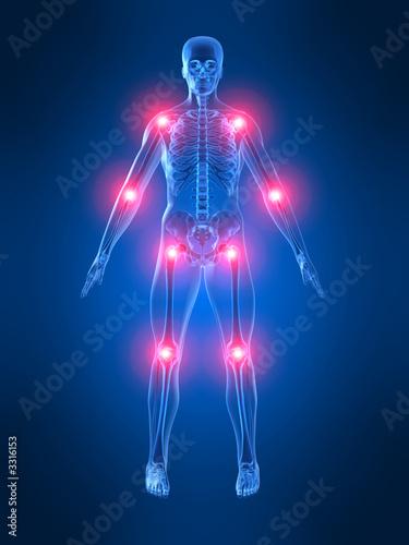 menschliches skelett mit schmerzabbildung