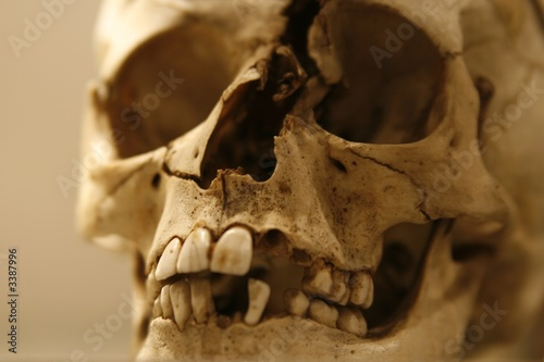 old human skull with a broken nose and forehead