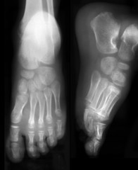 Front and side view of foots on x-ray film