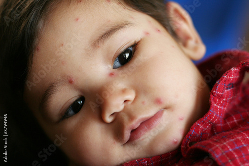 Baby with Chicken Pox