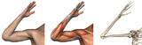 Suprapunerile anatomice - braţul drept - face 3D