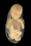 Fetus on Black