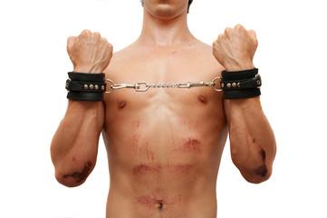 Injured victim in handcuffs