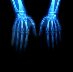 two hands in x-rays