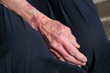 Sceriosis Skin Condition