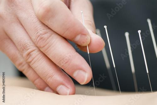 Leinwandbild Motiv Treatment by acupuncture