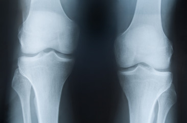 X-ray photograph of knees