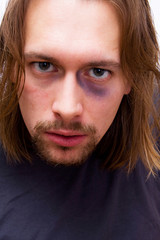 Young man with black eye