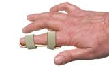 A broken finger in a temporary splint. poster