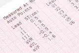 cardiographical test results,  poster