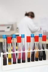 Bactériologie alimentaire labo