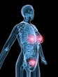 weibliche anatomie mit brust und uterus
