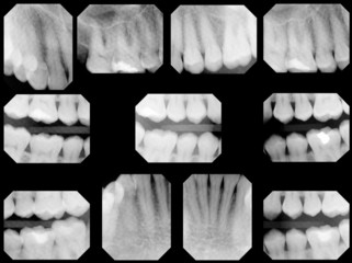dental x-rays, full set - normal adult, 1 filling