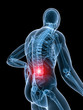 röntgen illustration-rückenschmerzen